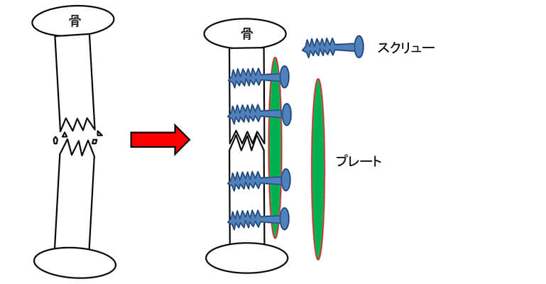 プレート法のイメージ