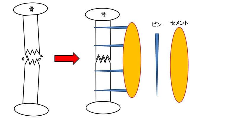 創外固定法のイメージ